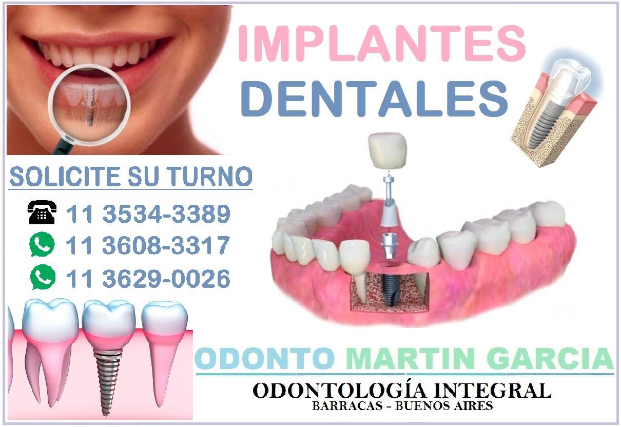 Implantes Dentales Titanio