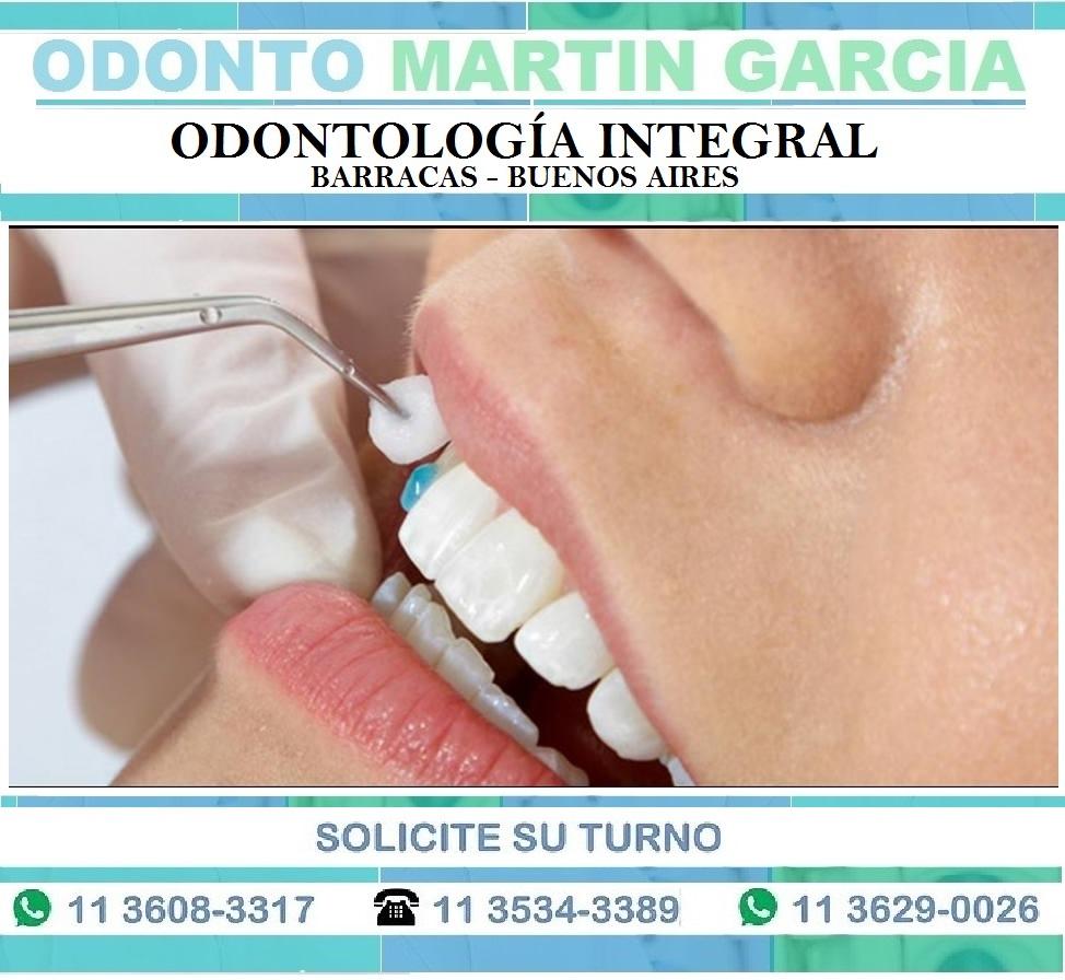 Carillas Dentales Estéticas